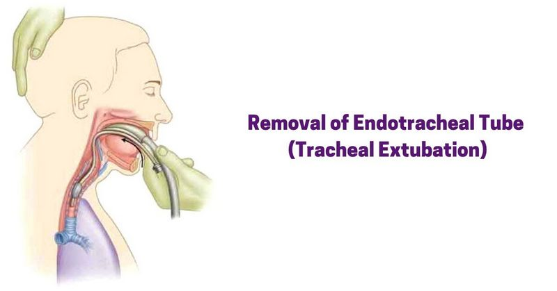 Removal of Endotracheal Tube (Tracheal Extubation)