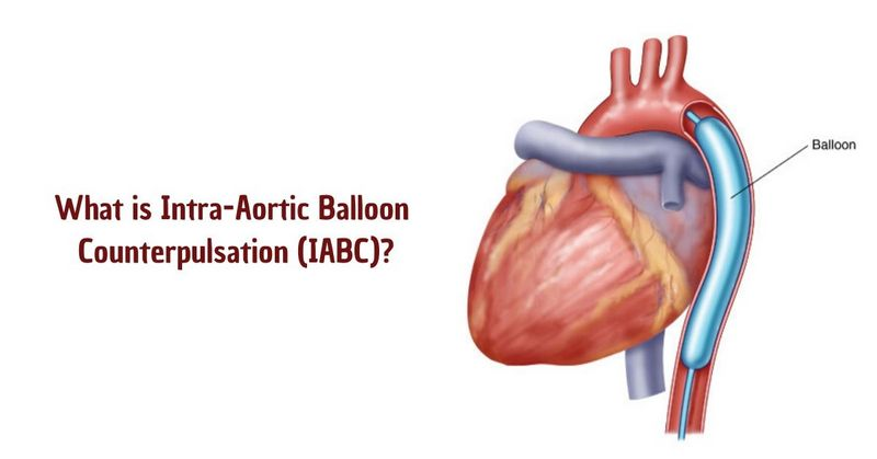 What is Intra-Aortic Balloon Counterpulsation (IABC)
